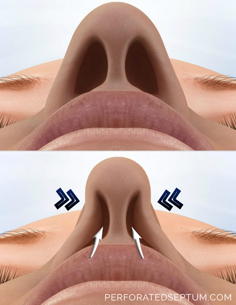 nasal septum perforation surgery