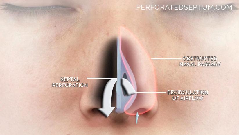 hole septum surgery
