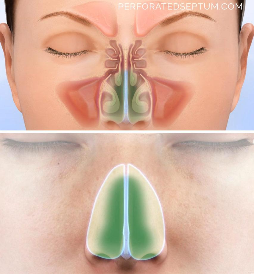 surgery nasal septum