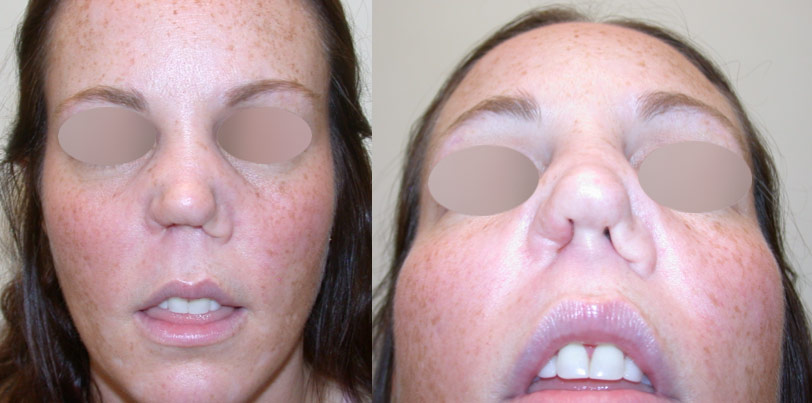 What Effect Does Cocaine Have On The Nose Septum