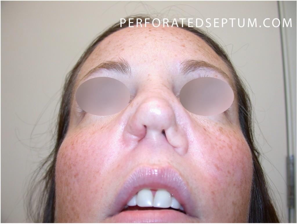 Perforated Septum Repair Specialist - Dr  Jason Hamilton, MD